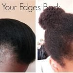 Amazing Tips & Treatment to Grow Back Receding Edges in Few Weeks