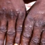 Monkey Pox Hit Lagos, Enugu and Akwa Ibom – See Symptoms and Prevention Tips